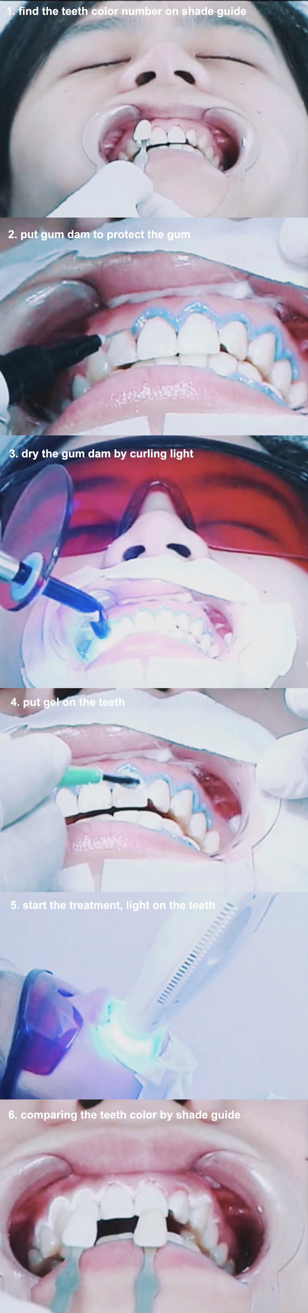 teeth-whiten-treatment