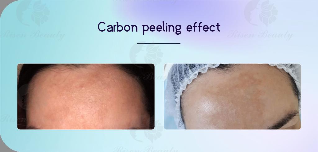 carbon-peeling