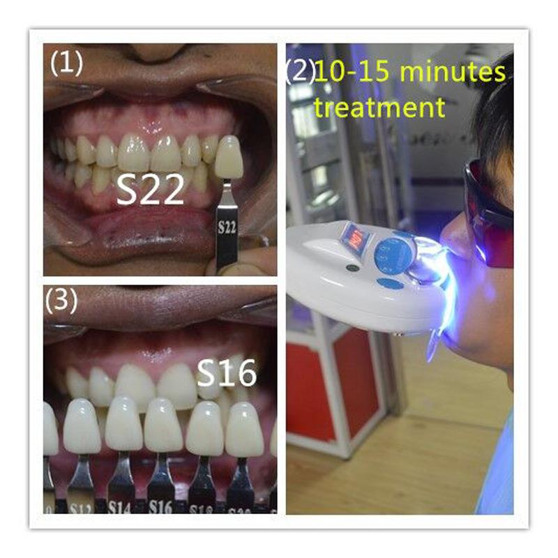 Easy installation teeth whitening machine with case